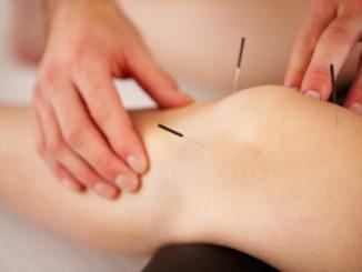 accupuncture-knee-needles-arthritis